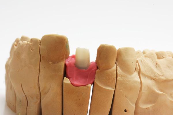 Implantatversorgung, Zirkonabutment