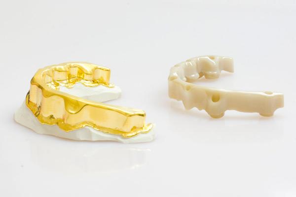 Zirkonsteg auf sieben Implantaten