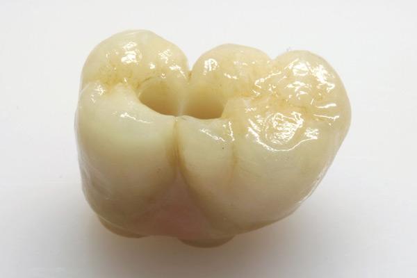 Verblockte Kronen auf zwei Implantaten