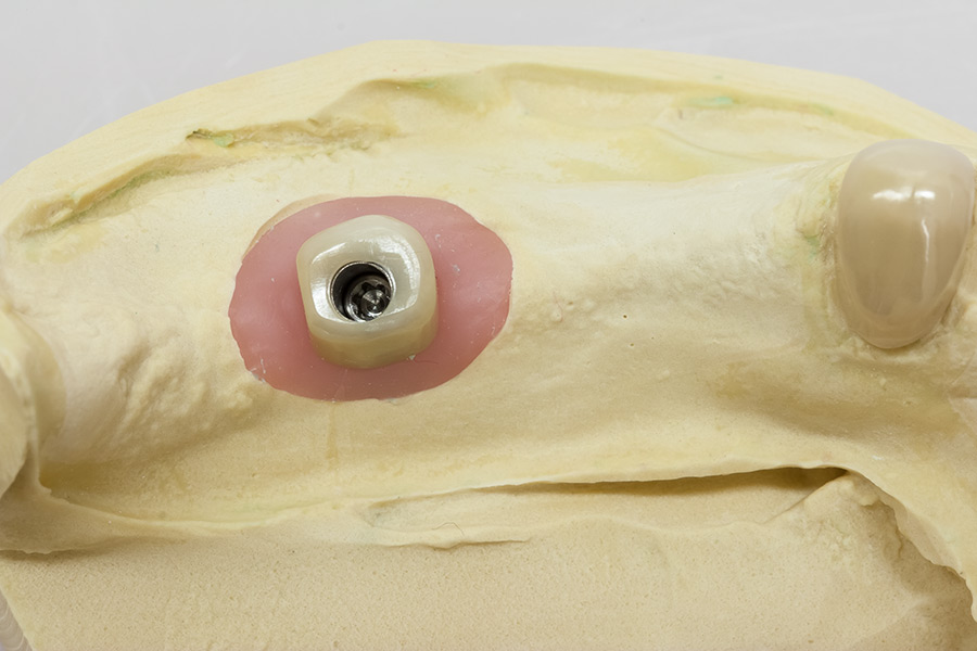 Inneteleskop Zirkon auf Klebebasis