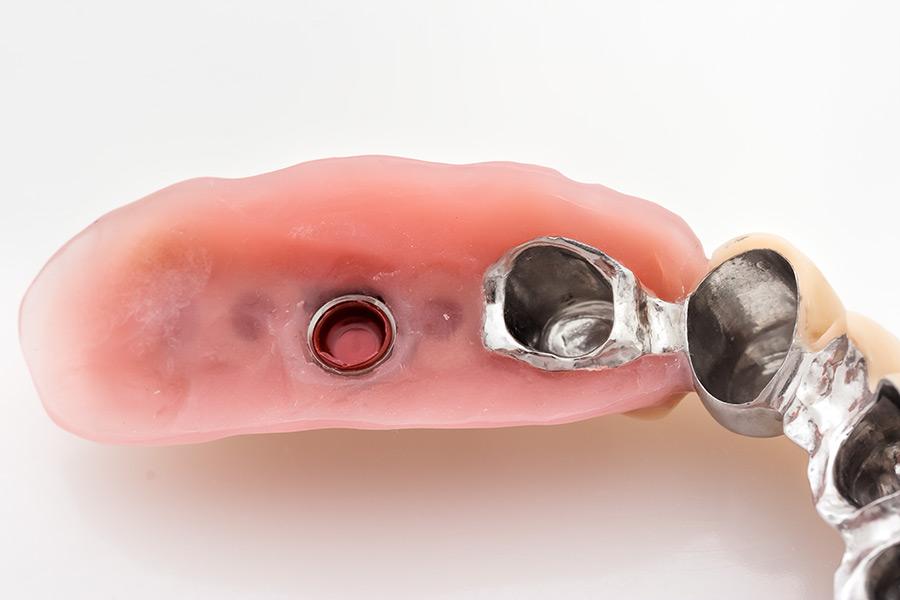 Teleskoparbeit auf Implantaten