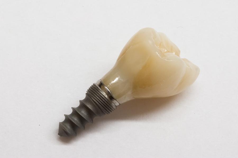 Verschraubte Zirkonkrone auf Implantat